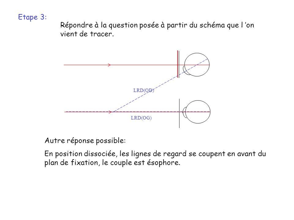 Etape 4: Estimation de l ésophorie.