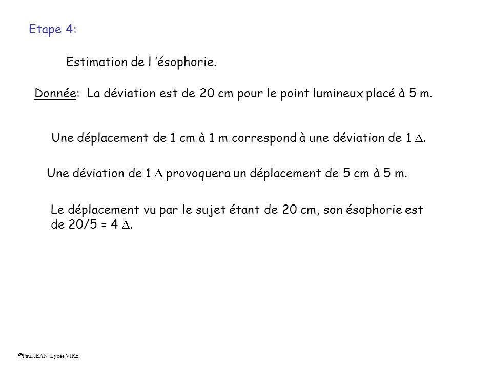 Etape 4: Estimation de l ésophorie. Donnée: La déviation est de 20 cm pour le point lumineux placé à 5 m. Une déplacement de 1 cm à 1 m correspond à u