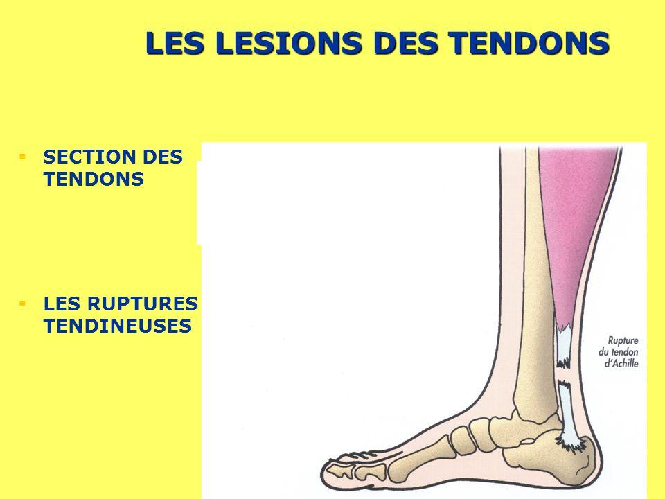 Prévention des Risques liés à lActivité Physique 11 LES LESIONS DES TENDONS SECTION DES TENDONS LES RUPTURES TENDINEUSES