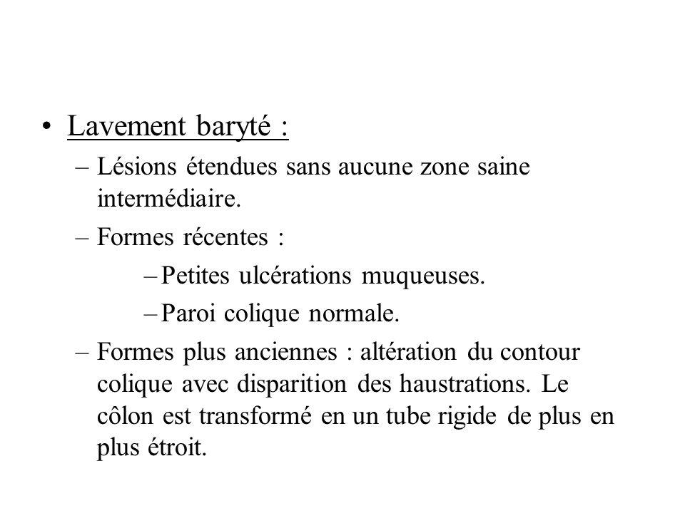 Lavement baryté : –Lésions étendues sans aucune zone saine intermédiaire.