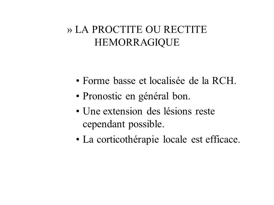 » LA PROCTITE OU RECTITE HEMORRAGIQUE Forme basse et localisée de la RCH.