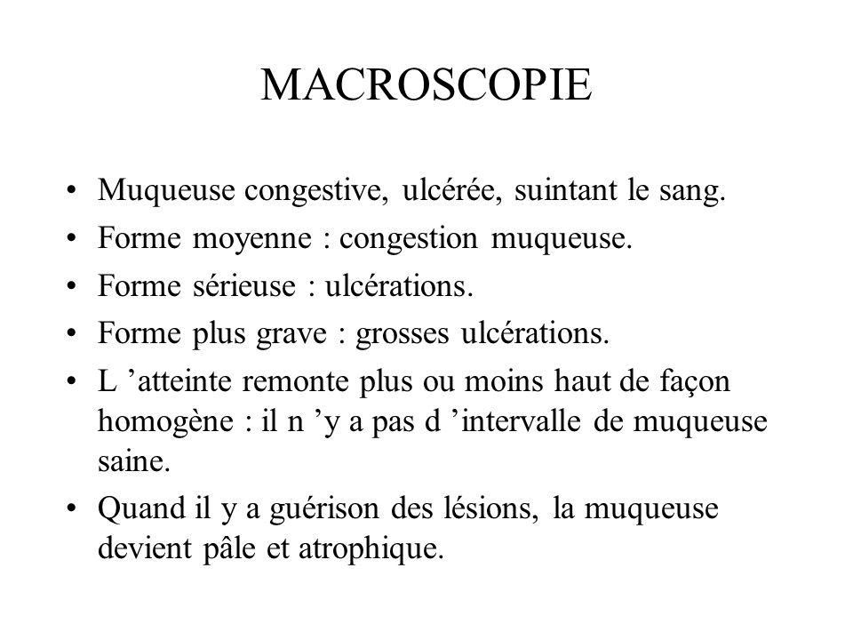 MICROSCOPIE Ulcérations.