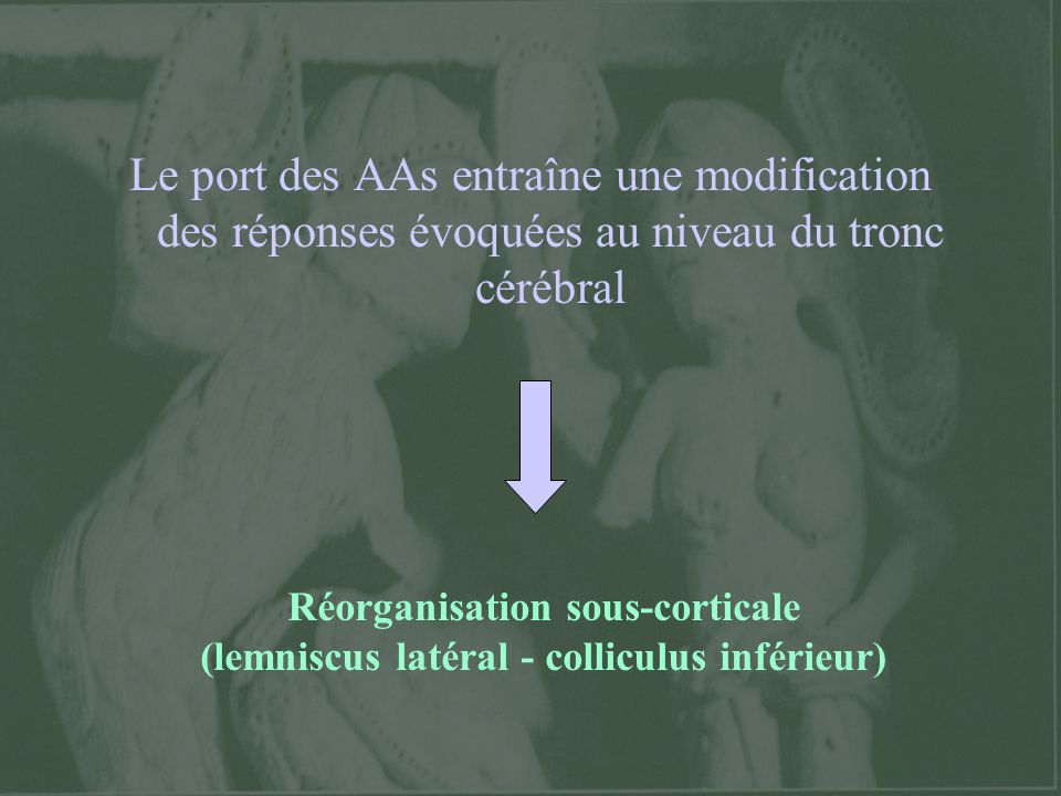 Le port des AAs entraîne une modification des réponses évoquées au niveau du tronc cérébral Réorganisation sous-corticale (lemniscus latéral - collicu