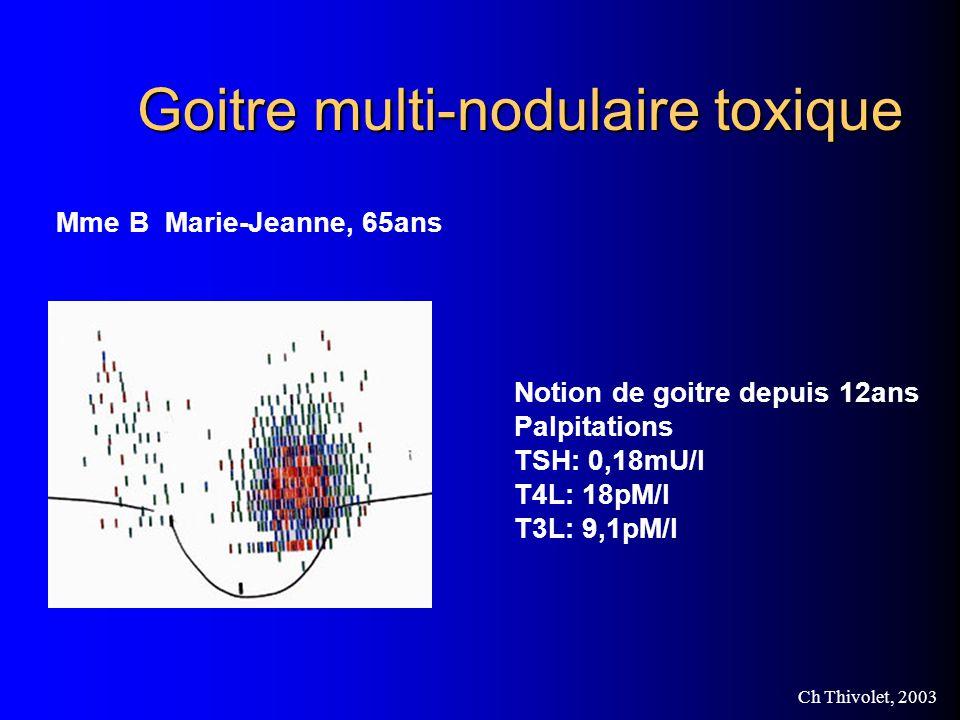 Ch Thivolet, 2003 Goitre multi-nodulaire toxique Mme B Marie-Jeanne, 65ans Notion de goitre depuis 12ans Palpitations TSH: 0,18mU/l T4L: 18pM/l T3L: 9,1pM/l