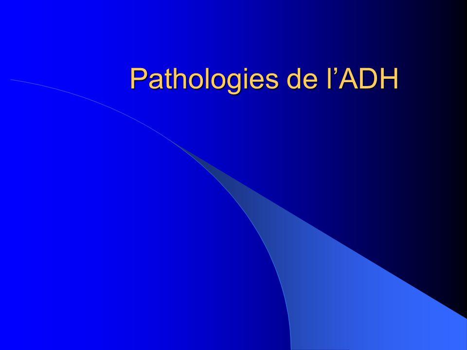 Pathologies de lADH