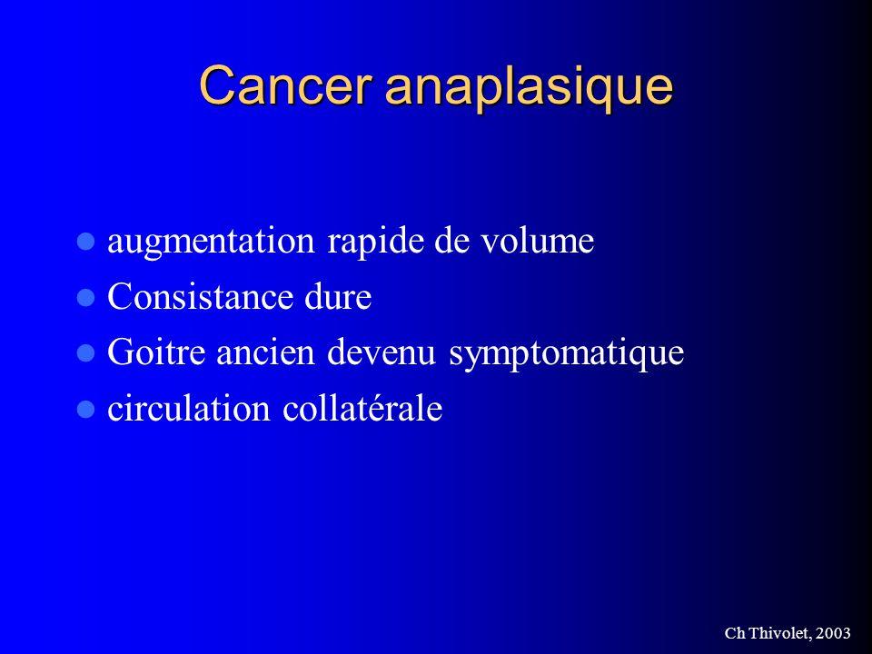 Ch Thivolet, 2003 Cancer anaplasique augmentation rapide de volume Consistance dure Goitre ancien devenu symptomatique circulation collatérale