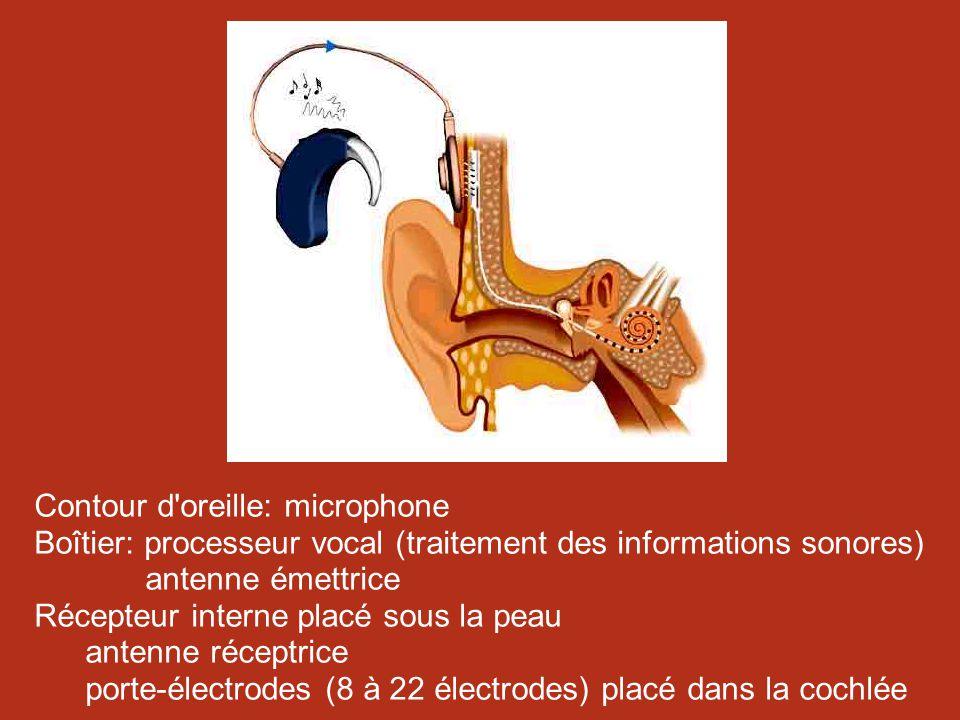 Contour d oreille: microphone Boîtier: processeur vocal (traitement des informations sonores) antenne émettrice Récepteur interne placé sous la peau antenne réceptrice porte-électrodes (8 à 22 électrodes) placé dans la cochlée