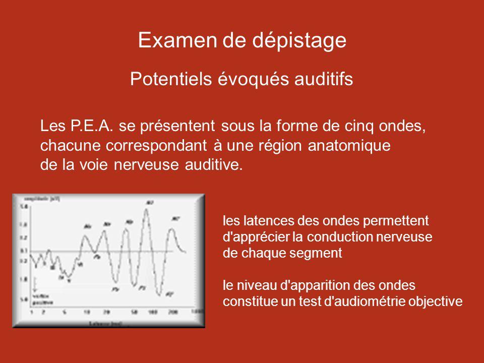 Examen de dépistage Potentiels évoqués auditifs Les P.E.A.