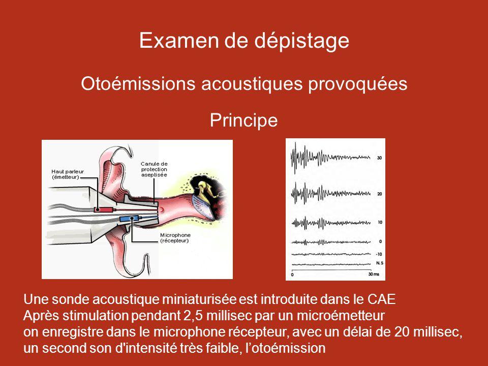 Examen de dépistage Otoémissions acoustiques provoquées Principe Une sonde acoustique miniaturisée est introduite dans le CAE Après stimulation pendant 2,5 millisec par un microémetteur on enregistre dans le microphone récepteur, avec un délai de 20 millisec, un second son d intensité très faible, lotoémission