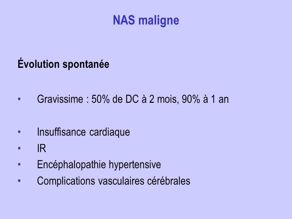 NAS maligne Évolution spontanée Gravissime : 50% de DC à 2 mois, 90% à 1 an Insuffisance cardiaque IR Encéphalopathie hypertensive Complications vascu