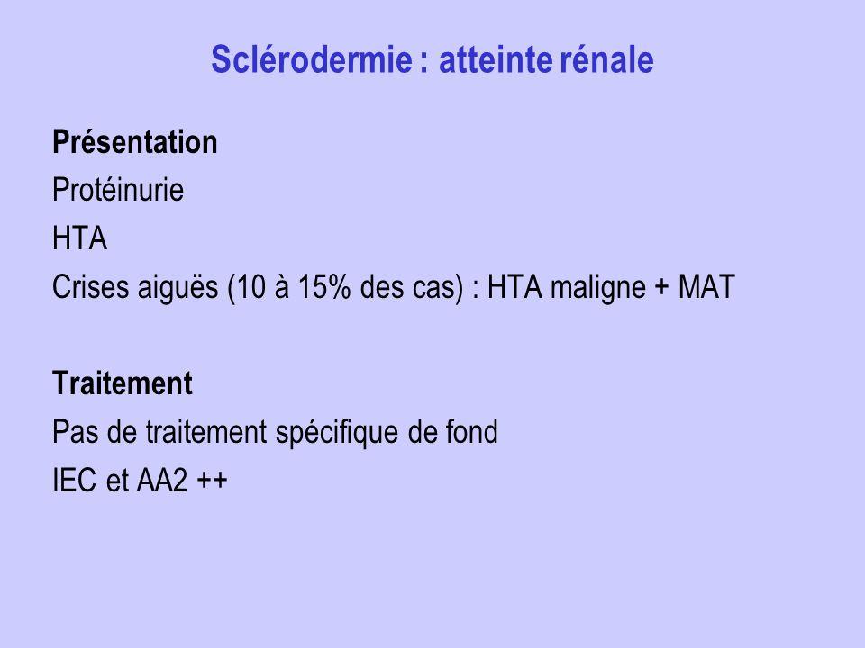 Sclérodermie : atteinte rénale Présentation Protéinurie HTA Crises aiguës (10 à 15% des cas) : HTA maligne + MAT Traitement Pas de traitement spécifiq