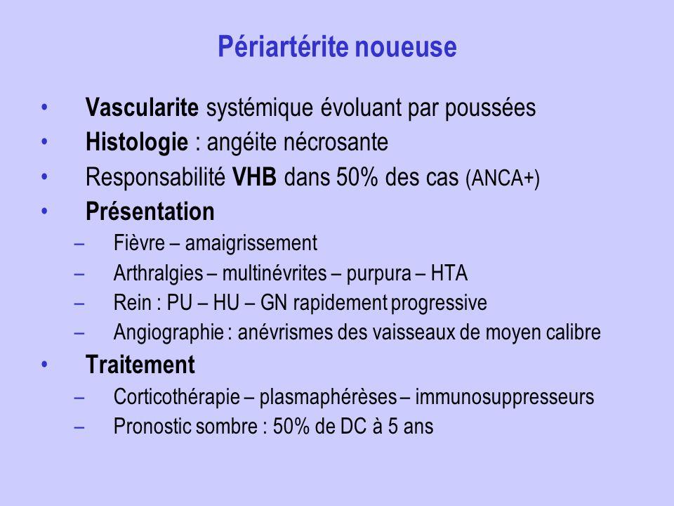 Périartérite noueuse Vascularite systémique évoluant par poussées Histologie : angéite nécrosante Responsabilité VHB dans 50% des cas (ANCA+) Présenta