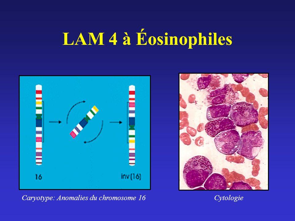 LAM 4 à Éosinophiles Caryotype: Anomalies du chromosome 16Cytologie