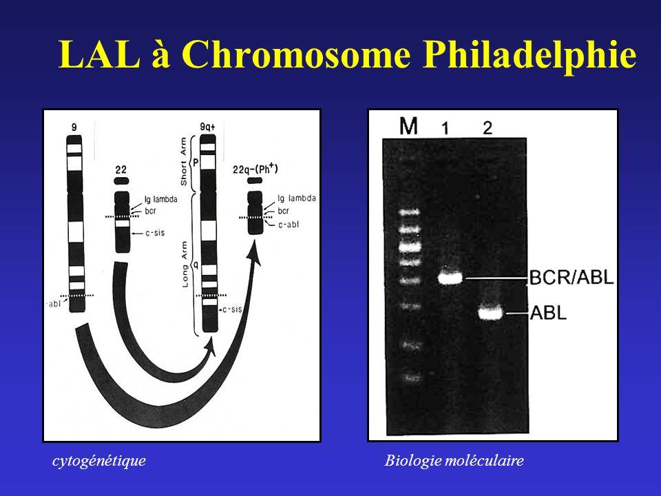 LAL à Chromosome Philadelphie cytogénétiqueBiologie moléculaire