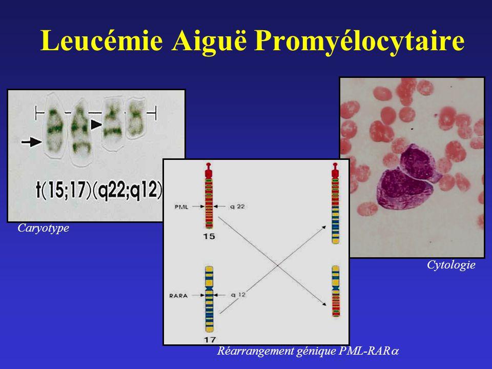 Leucémie Aiguë Promyélocytaire Caryotype Réarrangement génique PML-RAR Cytologie