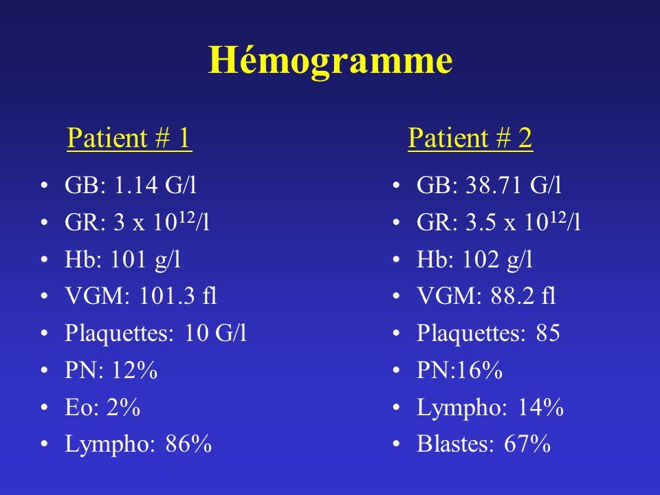 Hémogramme GB: 1.14 G/l GR: 3 x 10 12 /l Hb: 101 g/l VGM: 101.3 fl Plaquettes: 10 G/l PN: 12% Eo: 2% Lympho: 86% GB: 38.71 G/l GR: 3.5 x 10 12 /l Hb: