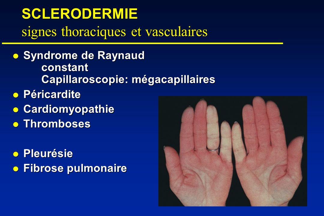 SCLERODERMIE signes thoraciques et vasculaires Syndrome de Raynaud constant Capillaroscopie: mégacapillaires Syndrome de Raynaud constant Capillaroscopie: mégacapillaires Péricardite Péricardite Cardiomyopathie Cardiomyopathie Thromboses Thromboses Pleurésie Pleurésie Fibrose pulmonaire Fibrose pulmonaire