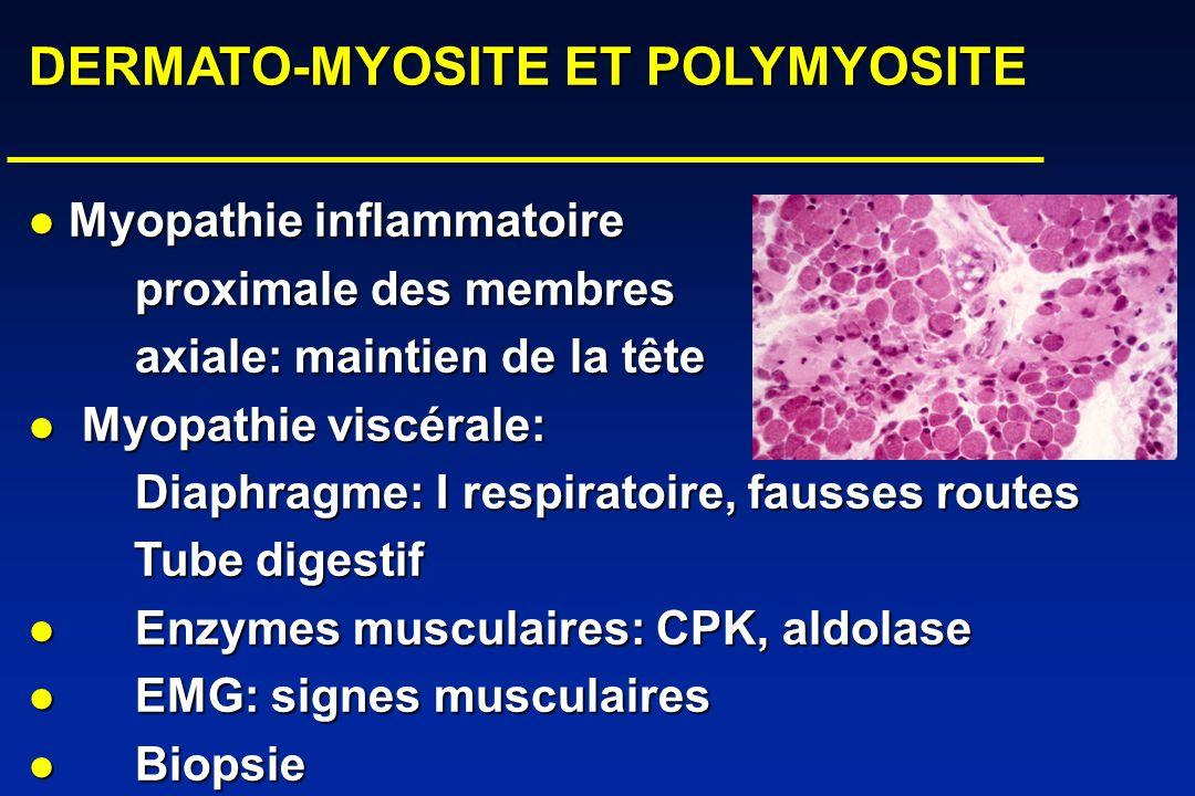 DERMATO-MYOSITE ET POLYMYOSITE DERMATO-MYOSITE ET POLYMYOSITE Myopathie inflammatoire Myopathie inflammatoire proximale des membres axiale: maintien de la tête Myopathie viscérale: Myopathie viscérale: Diaphragme: I respiratoire, fausses routes Tube digestif Tube digestif Enzymes musculaires: CPK, aldolase Enzymes musculaires: CPK, aldolase EMG: signes musculaires EMG: signes musculaires Biopsie Biopsie 3-Signes cutanés: 3-Signes cutanés: MCP MCP zones dextension zones dextension 4-Fibrosepulmonaire 4-Fibrosepulmonaire cutanée cutanée calcinose calcinose 5-Formes paranéoplasiques 5-Formes paranéoplasiques
