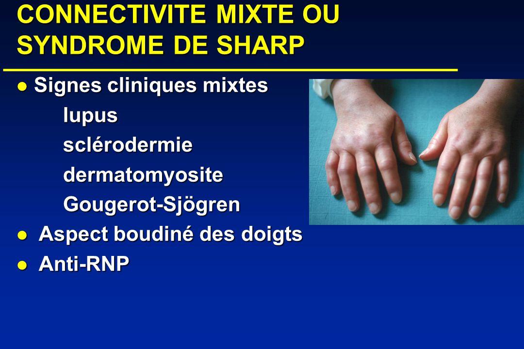 CONNECTIVITE MIXTE OU SYNDROME DE SHARP Signes cliniques mixtes Signes cliniques mixteslupussclérodermiedermatomyositeGougerot-Sjögren Aspect boudiné des doigts Aspect boudiné des doigts Anti-RNP Anti-RNP