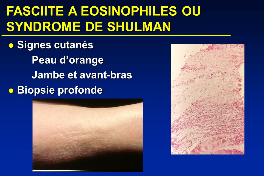 FASCIITE A EOSINOPHILES OU SYNDROME DE SHULMAN Signes cutanés Signes cutanés Peau dorange Jambe et avant-bras Biopsie profonde Biopsie profonde