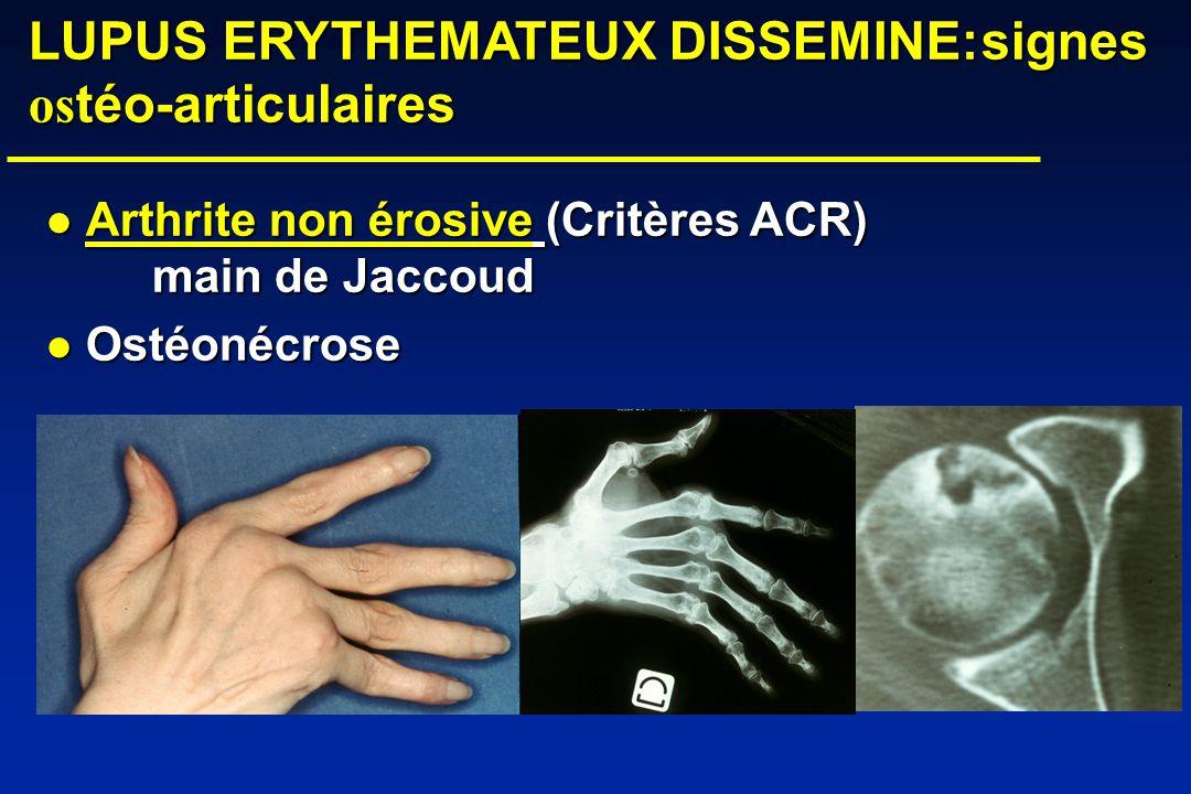 LUPUS ERYTHEMATEUX DISSEMINE:signes os téo-articulaires LUPUS ERYTHEMATEUX DISSEMINE:signes os téo-articulaires Arthrite non érosive (Critères ACR) main de Jaccoud Arthrite non érosive (Critères ACR) main de Jaccoud Ostéonécrose Ostéonécrose