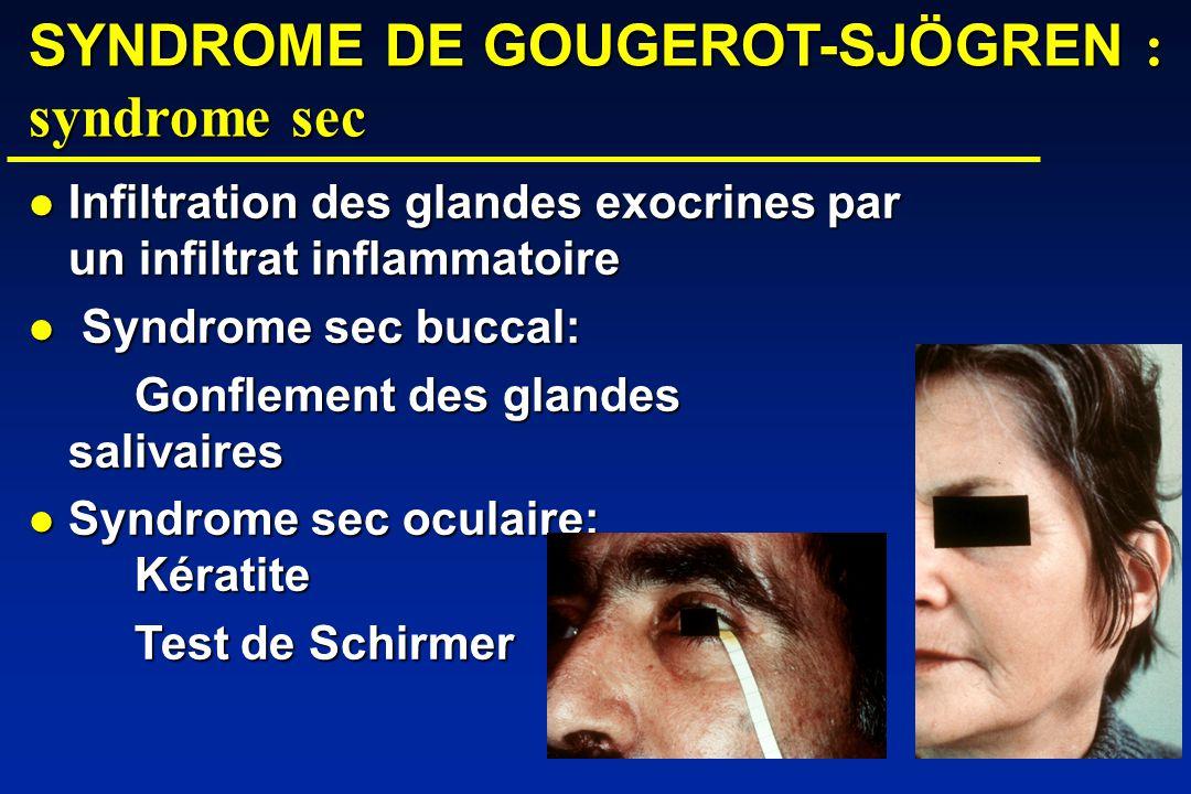 SYNDROME DE GOUGEROT-SJÖGREN : syndrome sec Infiltration des glandes exocrines par un infiltrat inflammatoire Infiltration des glandes exocrines par un infiltrat inflammatoire Syndrome sec buccal: Syndrome sec buccal: Gonflement des glandes salivaires Syndrome sec oculaire: Kératite Syndrome sec oculaire: Kératite Test de Schirmer