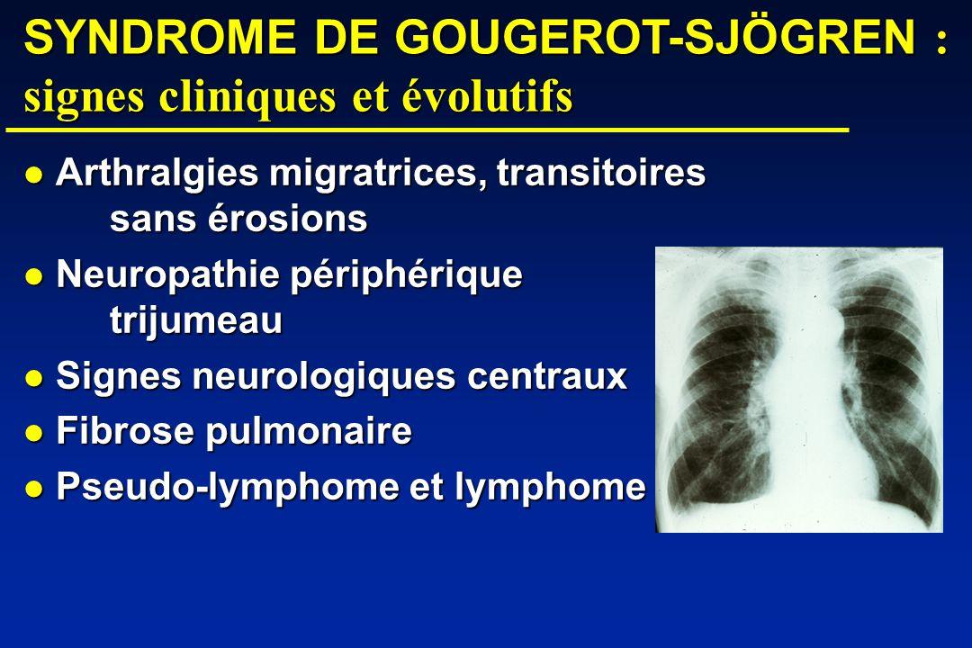 SYNDROME DE GOUGEROT-SJÖGREN : signes cliniques et évolutifs Arthralgies migratrices, transitoires sans érosions Arthralgies migratrices, transitoires sans érosions Neuropathie périphérique trijumeau Neuropathie périphérique trijumeau Signes neurologiques centraux Signes neurologiques centraux Fibrose pulmonaire Fibrose pulmonaire Pseudo-lymphome et lymphome Pseudo-lymphome et lymphome