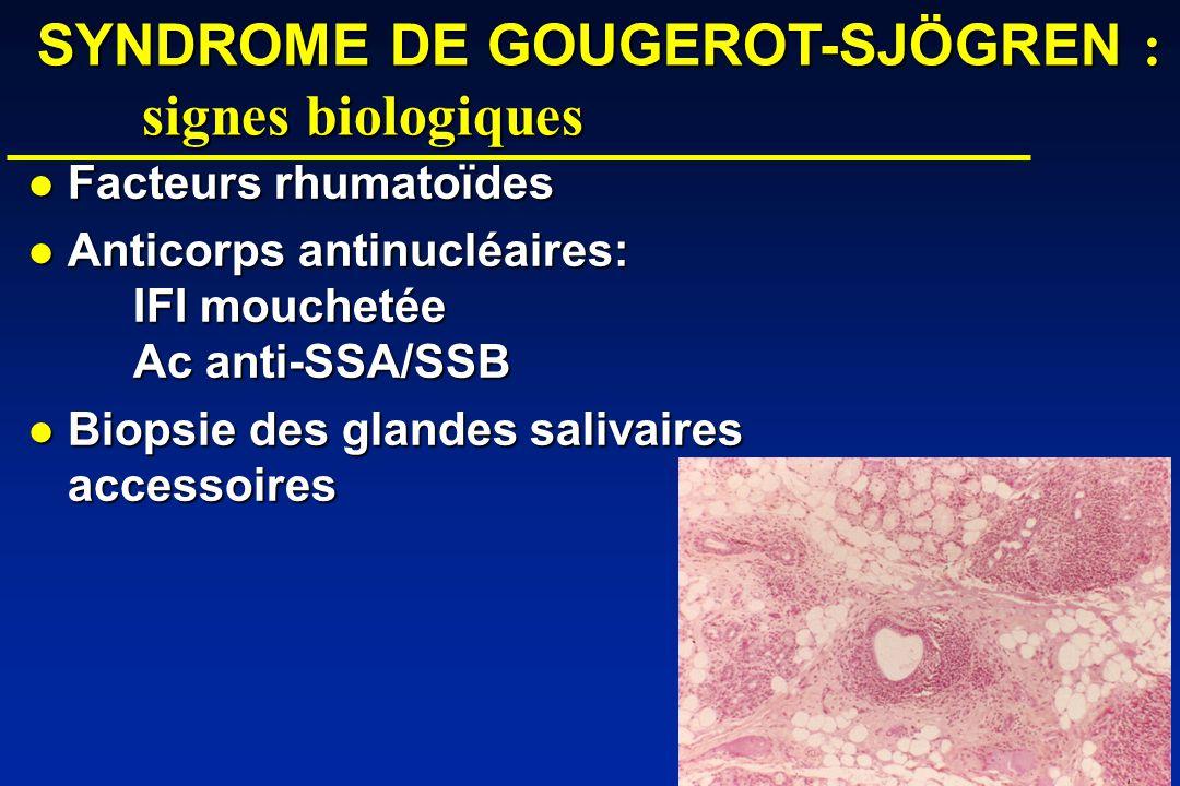 SYNDROME DE GOUGEROT-SJÖGREN : signes biologiques Facteurs rhumatoïdes Facteurs rhumatoïdes Anticorps antinucléaires: IFI mouchetée Ac anti-SSA/SSB Anticorps antinucléaires: IFI mouchetée Ac anti-SSA/SSB Biopsie des glandes salivaires accessoires Biopsie des glandes salivaires accessoires