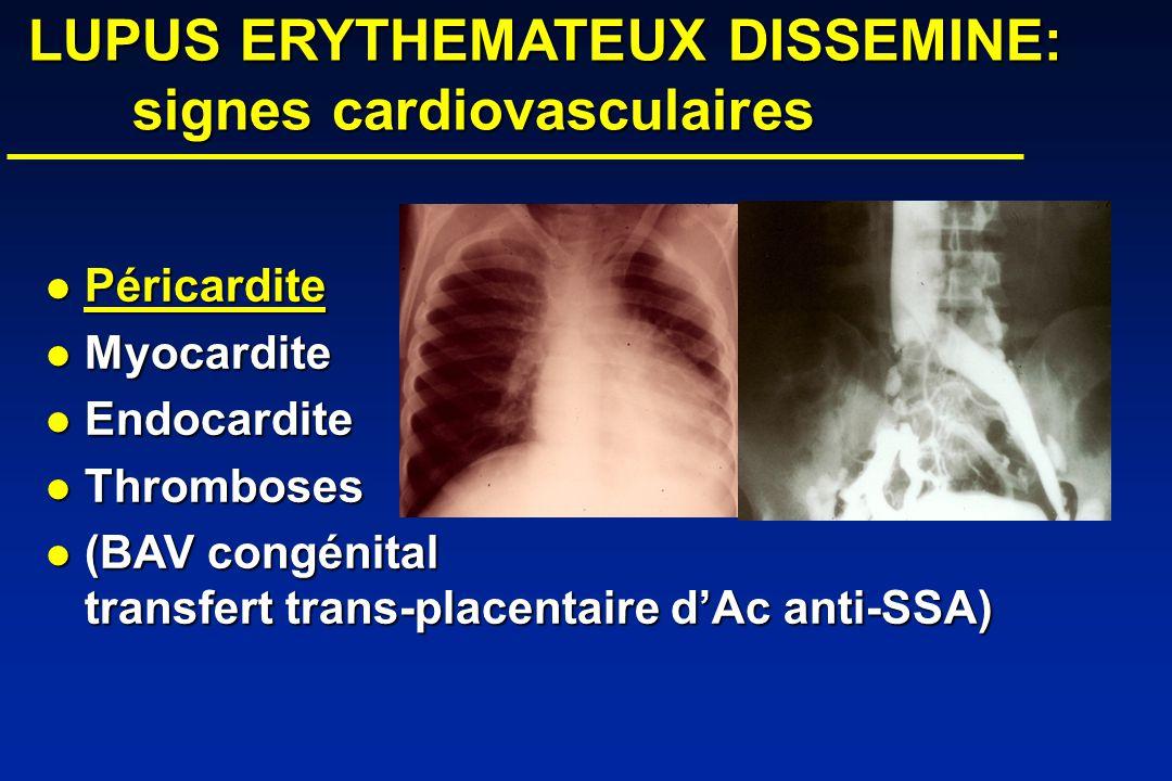 LUPUS ERYTHEMATEUX DISSEMINE: signes cardiovasculaires LUPUS ERYTHEMATEUX DISSEMINE: signes cardiovasculaires Péricardite Péricardite Myocardite Myocardite Endocardite Endocardite Thromboses Thromboses (BAV congénital transfert trans-placentaire dAc anti-SSA) (BAV congénital transfert trans-placentaire dAc anti-SSA)