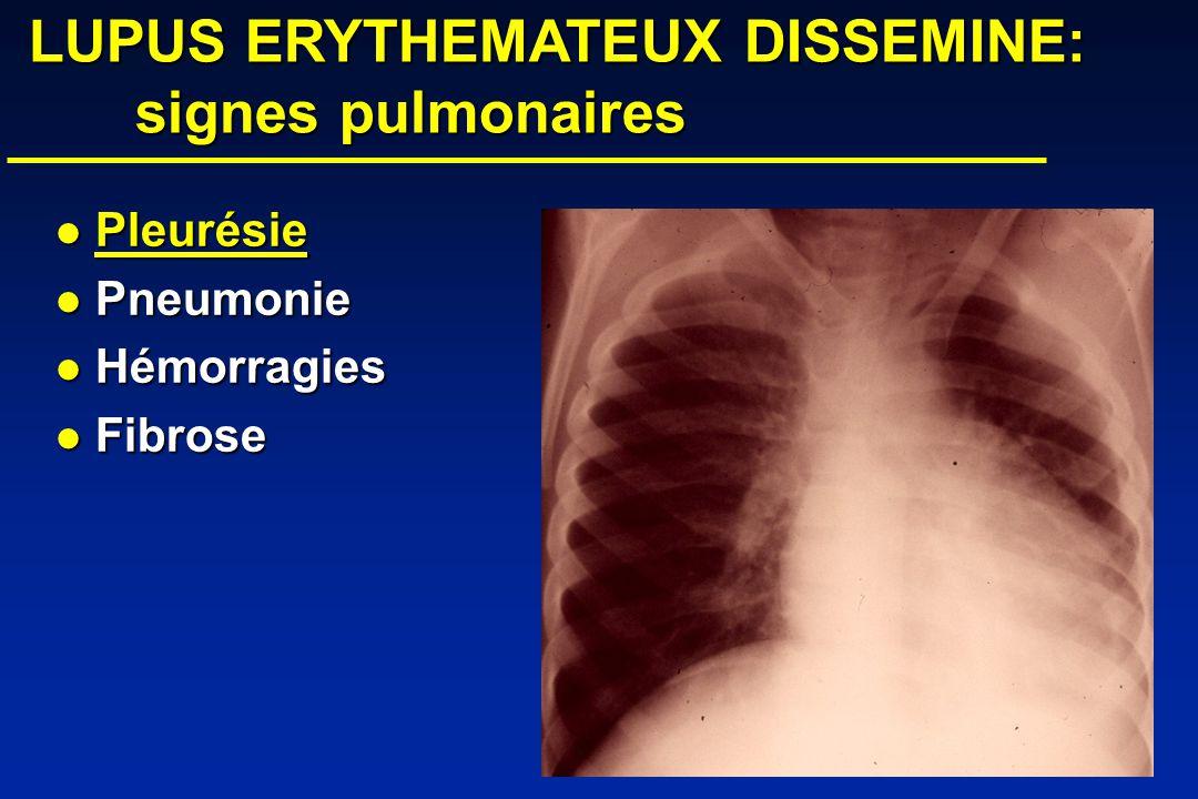 LUPUS ERYTHEMATEUX DISSEMINE: signes pulmonaires LUPUS ERYTHEMATEUX DISSEMINE: signes pulmonaires Pleurésie Pleurésie Pneumonie Pneumonie Hémorragies Hémorragies Fibrose Fibrose