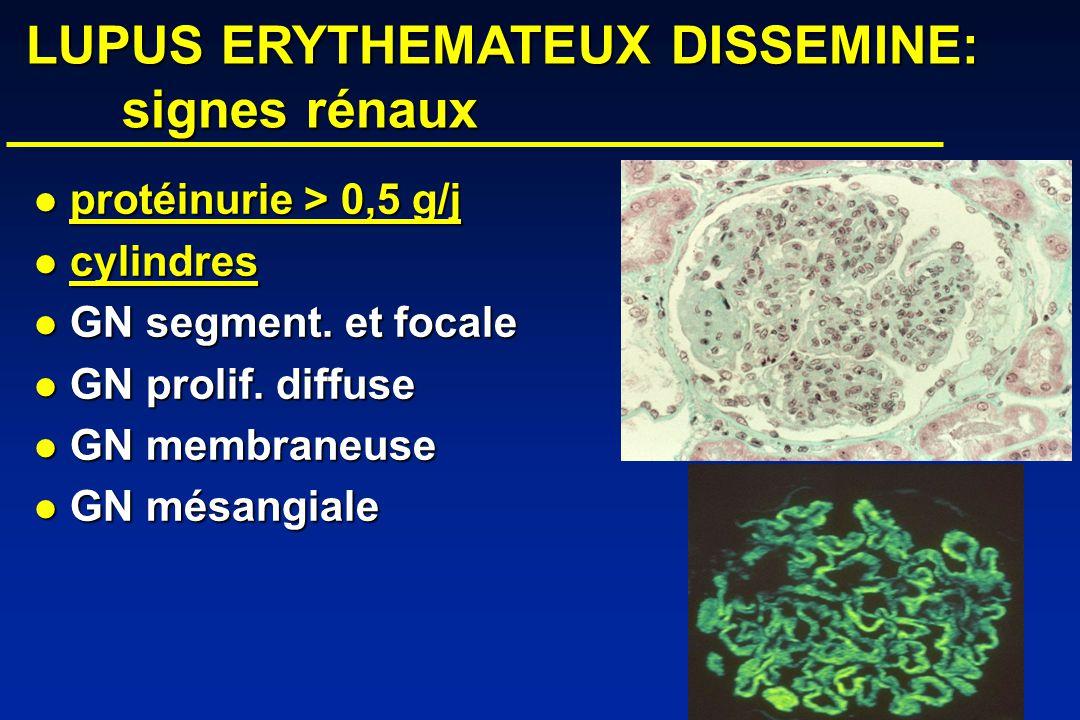LUPUS ERYTHEMATEUX DISSEMINE: signes rénaux LUPUS ERYTHEMATEUX DISSEMINE: signes rénaux protéinurie > 0,5 g/j protéinurie > 0,5 g/j cylindres cylindres GN segment.