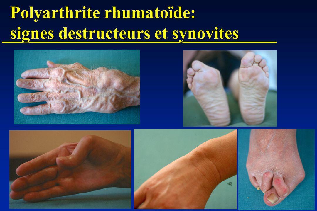 Polyarthrite rhumatoïde: signes destructeurs et synovites
