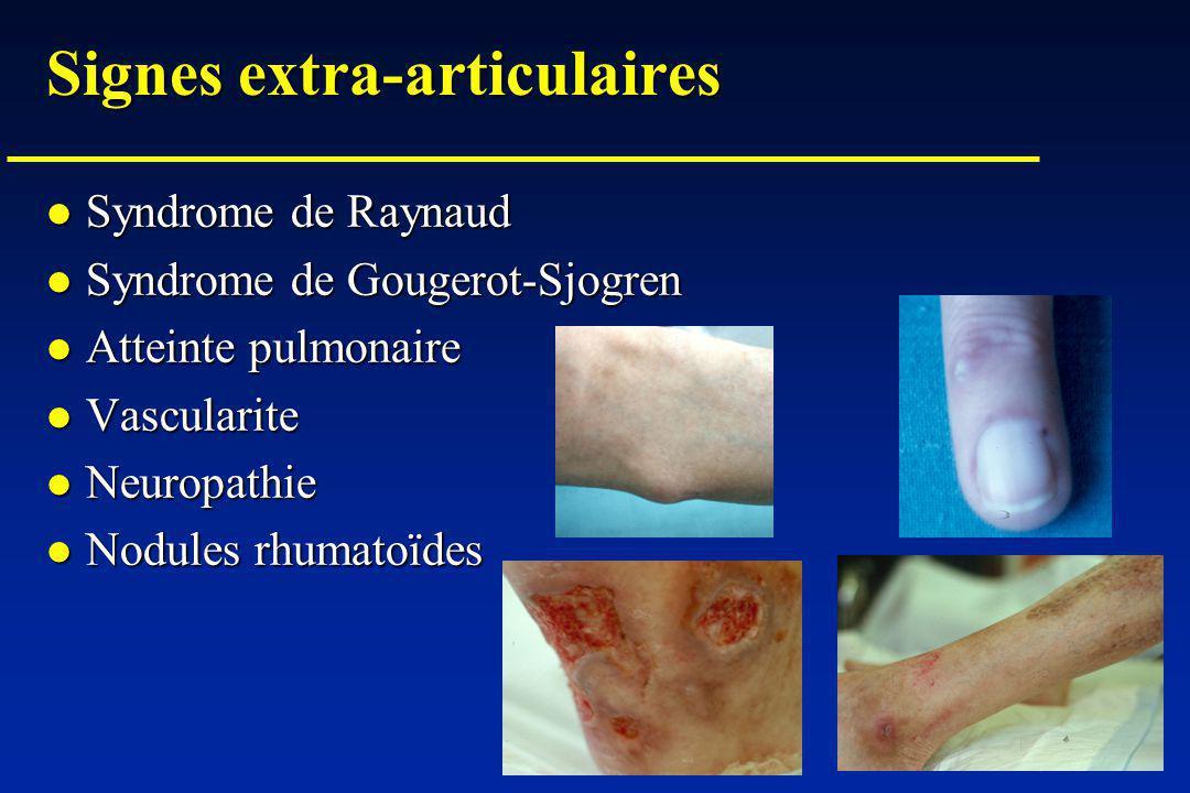 Signes extra-articulaires Syndrome de Raynaud Syndrome de Raynaud Syndrome de Gougerot-Sjogren Syndrome de Gougerot-Sjogren Atteinte pulmonaire Atteinte pulmonaire Vascularite Vascularite Neuropathie Neuropathie Nodules rhumatoïdes Nodules rhumatoïdes