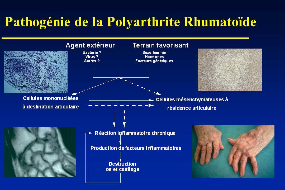 Immunopathologie de la PR Accumulation de lymphocytes Th1 Accumulation de lymphocytes Th1 Production de cytokines pro-inflammatoires Production de cytokines pro-inflammatoires Défaut de cytokines anti-inflammatoires Défaut de cytokines anti-inflammatoires Destruction >> réparation Destruction >> réparation Prolifération incontrollée des synoviocytes Prolifération incontrollée des synoviocytes Défaut dapoptose Défaut dapoptose Mutations secondaires de p53 Mutations secondaires de p53