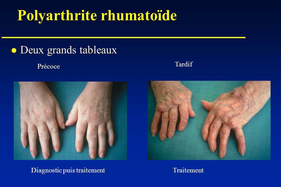 Polyarthrite rhumatoïde Deux grands tableaux Deux grands tableaux Précoce Tardif Diagnostic puis traitementTraitement