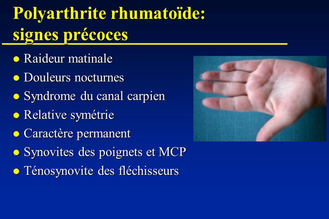 Polyarthrite rhumatoïde: diagnostic différentiel Rhumatisme inflammatoire bénin intermittent Arthralgies migratrices, transitoires et non destructrices Rhumatisme inflammatoire bénin intermittent Arthralgies migratrices, transitoires et non destructrices Syndrome de Gougerot-Sjögren Signes daccompagnement: syndrome sec FR, AAN moucheté Syndrome de Gougerot-Sjögren Signes daccompagnement: syndrome sec FR, AAN moucheté Connectivites Signes daccompagnement extra-articulaires Connectivites Signes daccompagnement extra-articulairesAAN Spondylarthropathies Asymétrie Spondylarthropathies Asymétrie Atteinte axiale HLA-B27 Si mono-arthrite: infection à éliminer Si mono-arthrite: infection à éliminer