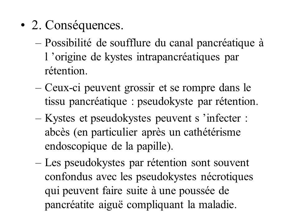 2. Conséquences. –Possibilité de soufflure du canal pancréatique à l origine de kystes intrapancréatiques par rétention. –Ceux-ci peuvent grossir et s