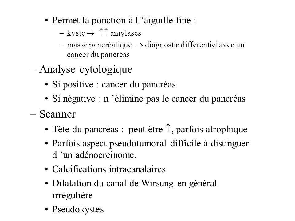Permet la ponction à l aiguille fine : –kyste amylases –masse pancréatique diagnostic différentiel avec un cancer du pancréas –Analyse cytologique Si