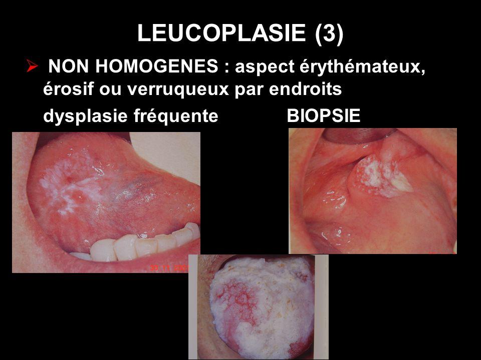 LEUCOPLASIE (3) NON HOMOGENES : aspect érythémateux, érosif ou verruqueux par endroits dysplasie fréquente BIOPSIE