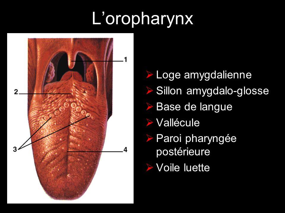 LEUCOPLASIE (2) HOMOGENE : plaque circonscrite plus ou moins fissurée peu ou pas de dysplasie