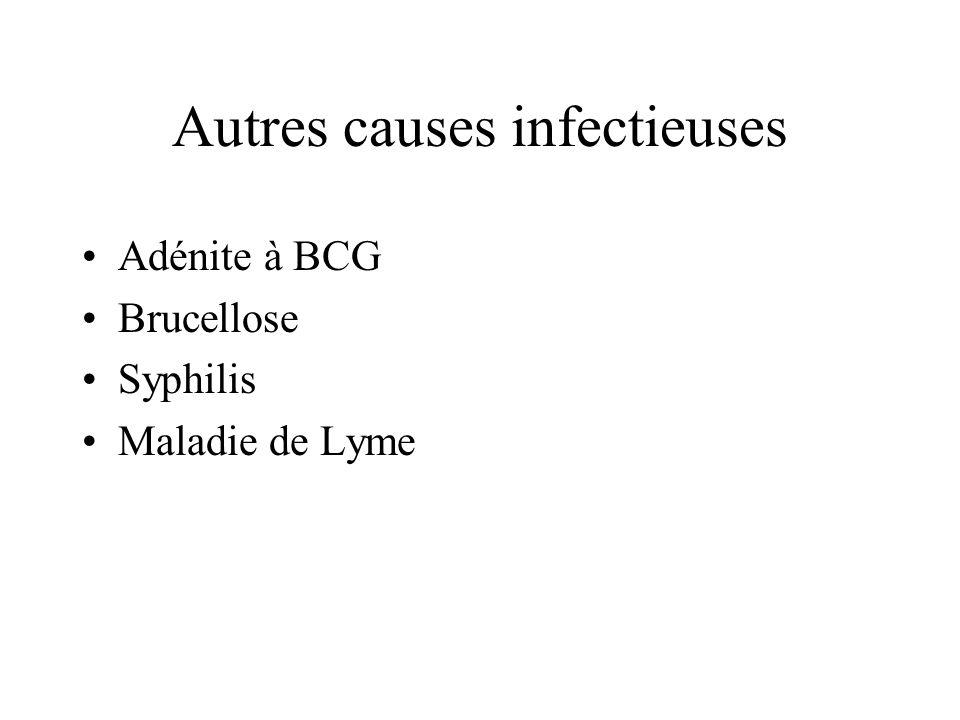 Autres causes infectieuses Adénite à BCG Brucellose Syphilis Maladie de Lyme