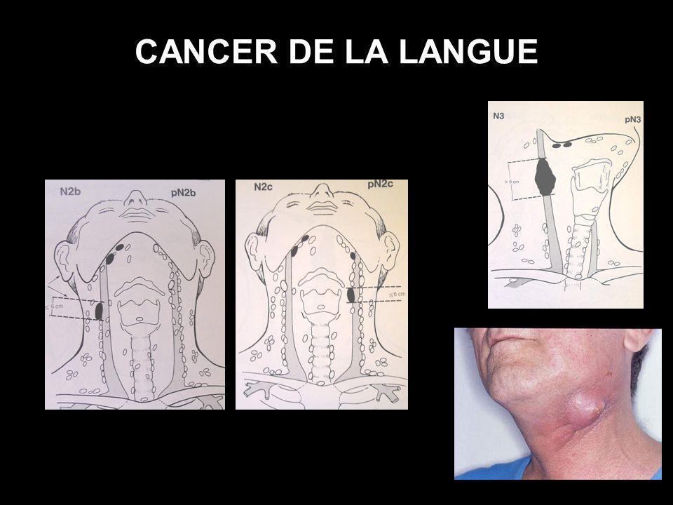 CANCER DE LA LANGUE (6) EVOLUTION NATURELLE : en arrière : base de langue puis pharyngolarynx en bas : plancher buccal (génioglosse, mylohyoïdien) : ankyloglossie latéralement : sillon amygdaloglosse,mandibule médialement : hémilangue controlatérale seconde localisation et métastase