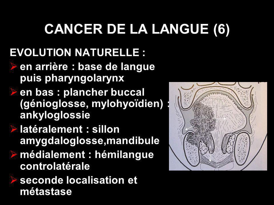 PRINCIPES DU TRAITEMENT (2) LA CHIRURGIE L exérèse tumorale : préservation de la fonction .