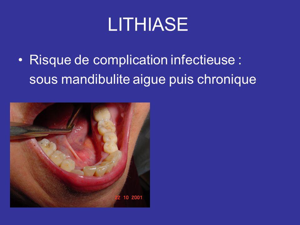 LITHIASE Risque de complication infectieuse : sous mandibulite aigue puis chronique