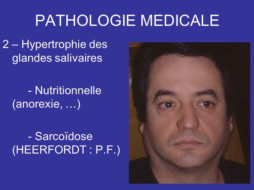 PATHOLOGIE MEDICALE 2 – Hypertrophie des glandes salivaires - Nutritionnelle (anorexie, …) - Sarcoïdose (HEERFORDT : P.F.)