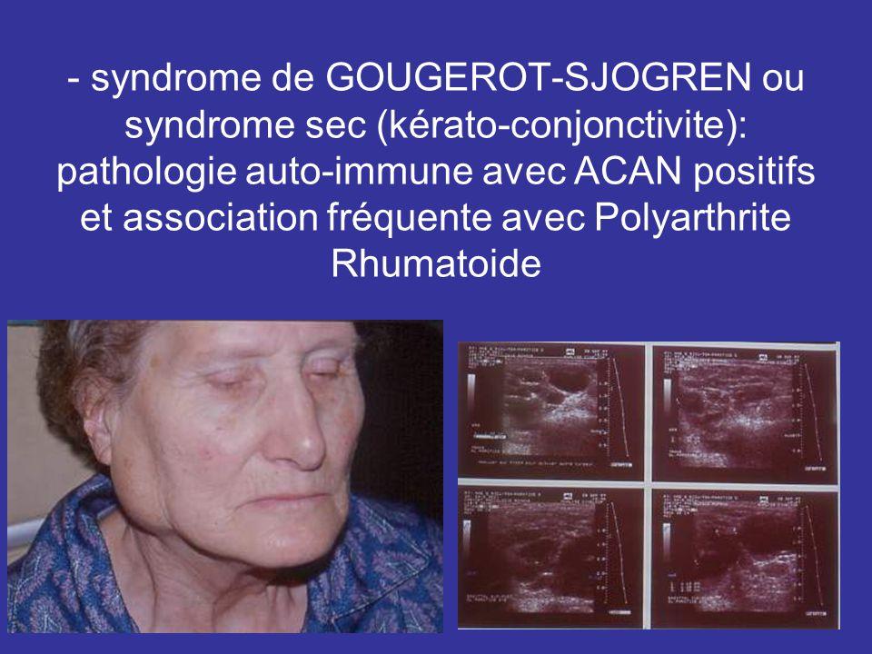 - syndrome de GOUGEROT-SJOGREN ou syndrome sec (kérato-conjonctivite): pathologie auto-immune avec ACAN positifs et association fréquente avec Polyart