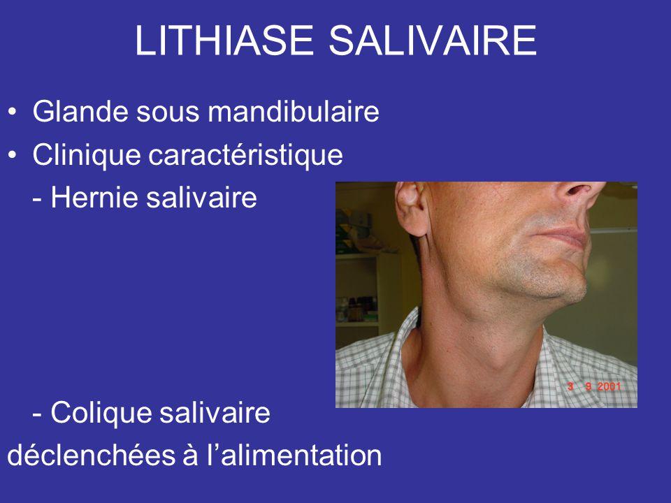 LITHIASE SALIVAIRE Glande sous mandibulaire Clinique caractéristique - Hernie salivaire - Colique salivaire déclenchées à lalimentation
