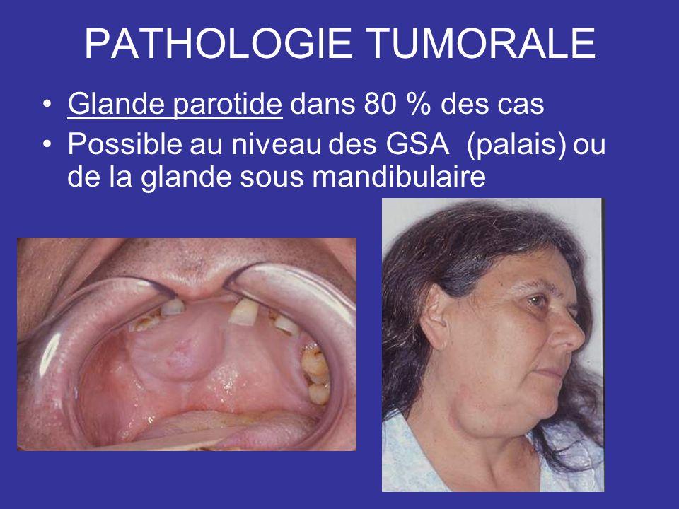 PATHOLOGIE TUMORALE Glande parotide dans 80 % des cas Possible au niveau des GSA (palais) ou de la glande sous mandibulaire