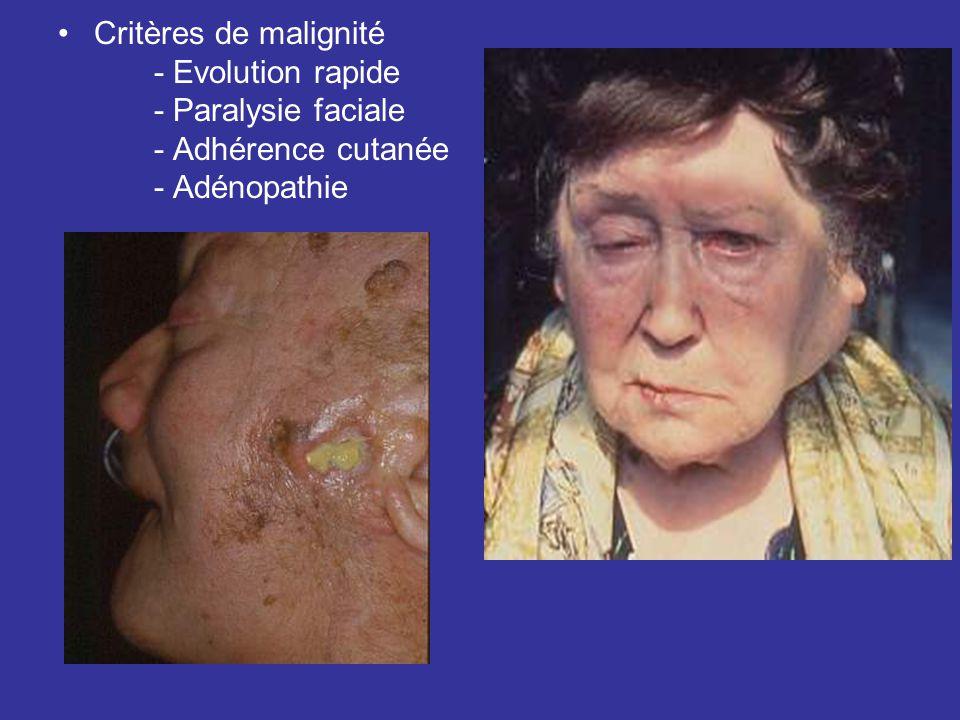 Critères de malignité - Evolution rapide - Paralysie faciale - Adhérence cutanée - Adénopathie