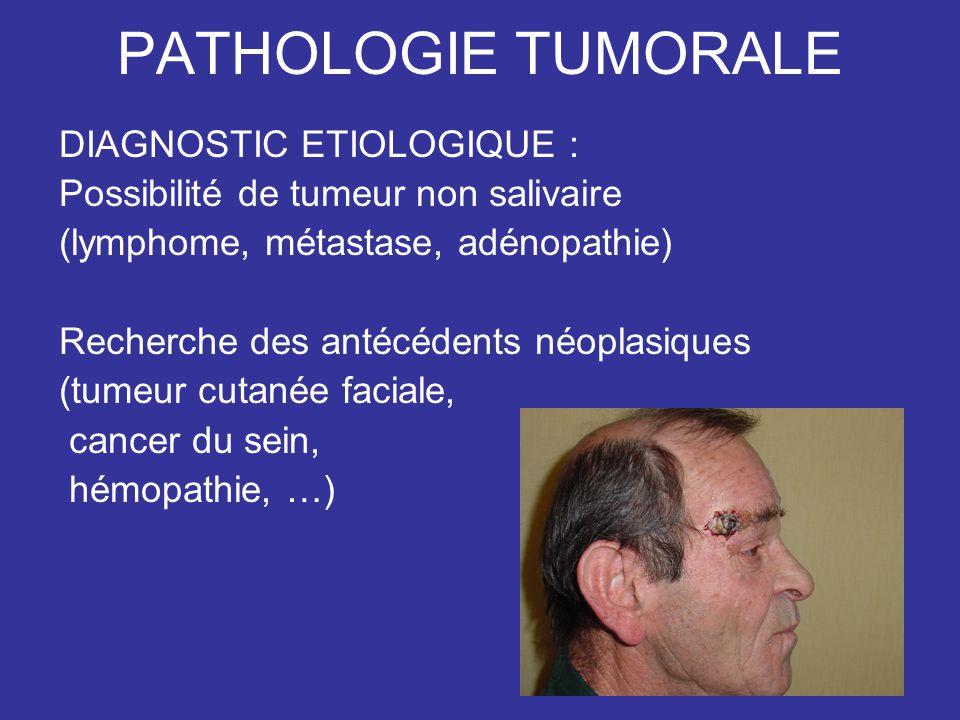 PATHOLOGIE TUMORALE DIAGNOSTIC ETIOLOGIQUE : Possibilité de tumeur non salivaire (lymphome, métastase, adénopathie) Recherche des antécédents néoplasiques (tumeur cutanée faciale, cancer du sein, hémopathie, …)